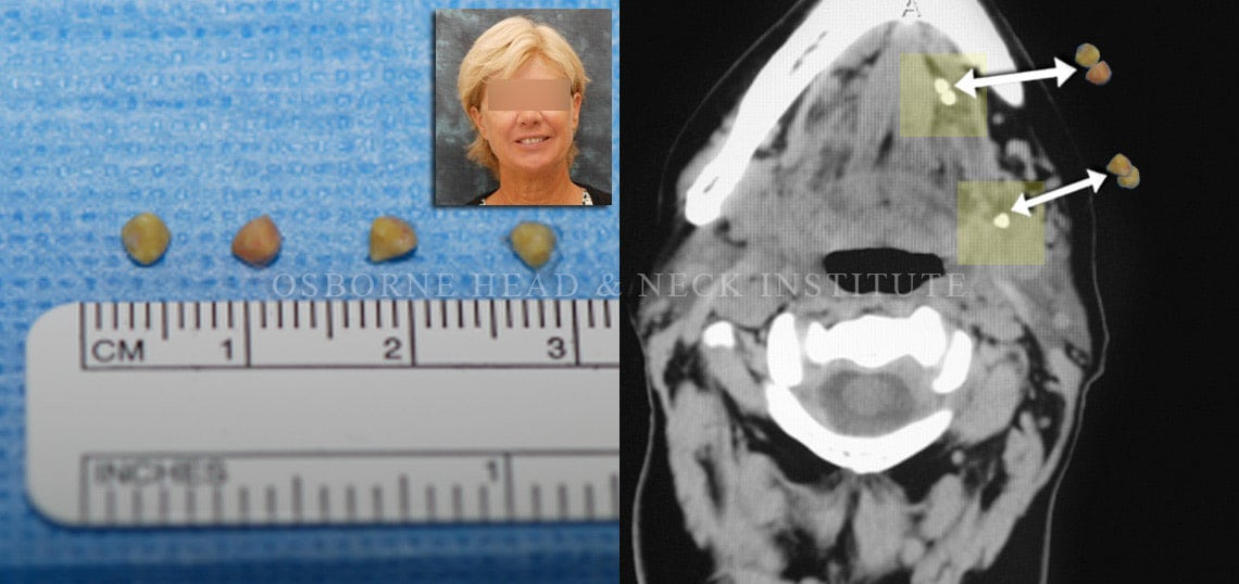 Figure: Stone - Axial CT - Left submandibular gland and duct.
