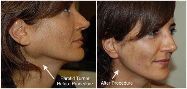 parotid tumor surgery
